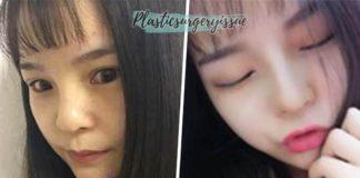 รีวิวศัลยกรรมเกาหลี-น้องแนน-จมูกที่เกาหลี