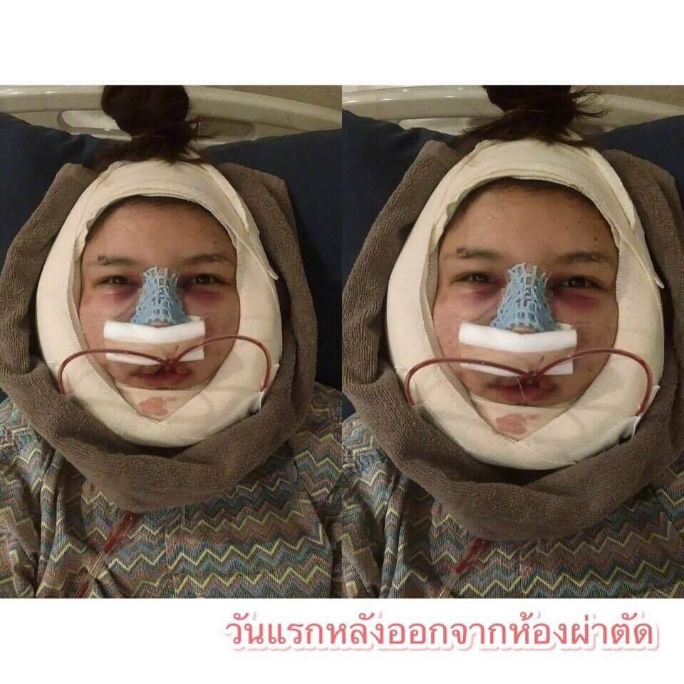 เมย์-วันแรกหลังทำศัลยกรรม