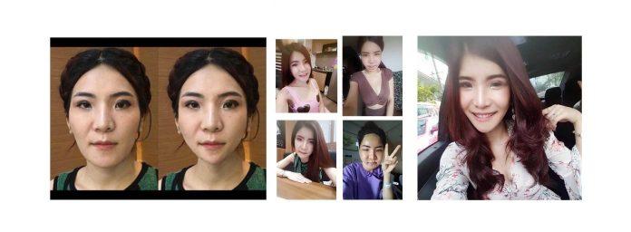 รีวิวศัลยกรรมเกาหลี คนไทยจริง