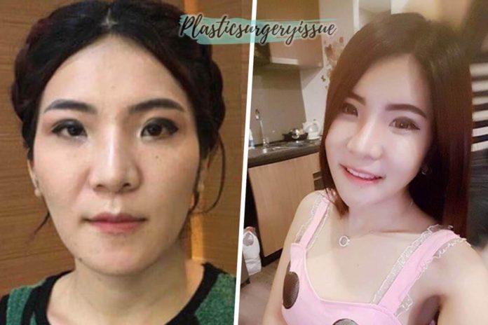 รีวิวศัลยกรรมเกาหลี-จากคนไทยจริง