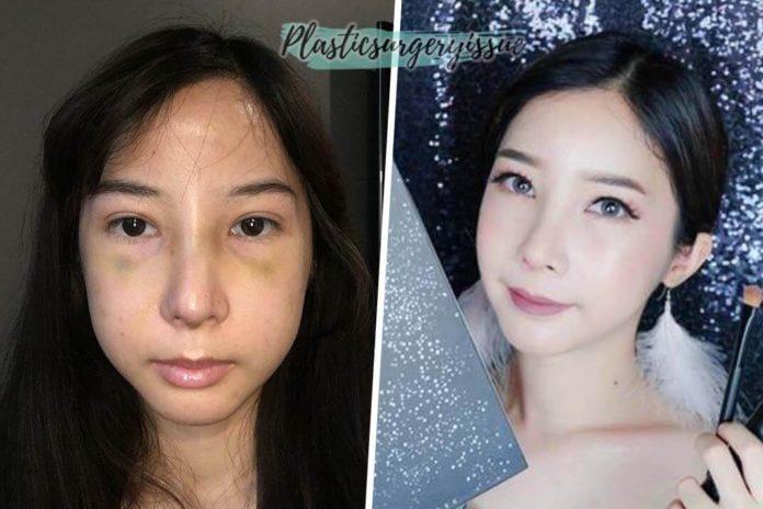 ศัลยกรรมรีวิว-ภาพพิมพ์-Beauty-Blogger-ปัจจุบัน