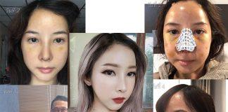 ศัลยกรรมรีวิว-ภาพพิมพ์ Beauty Blogger