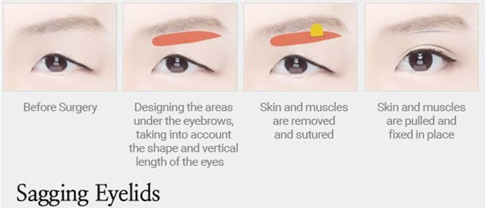 Sagging Eyelids