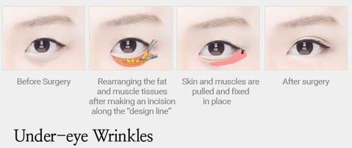 uder eye wrinkles