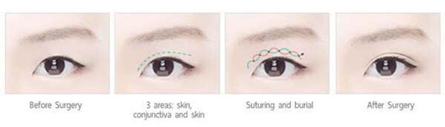 แก้หนังตาตก ด้วยการผ่าตัดปรับกล้ามเนื้อตา